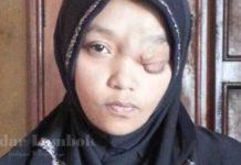 Derita Istiarah, Gadis Penyandang Tumor Ganas