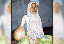 Derita Inaq Ismi , 18 Tahun Idap Tumor Ganas
